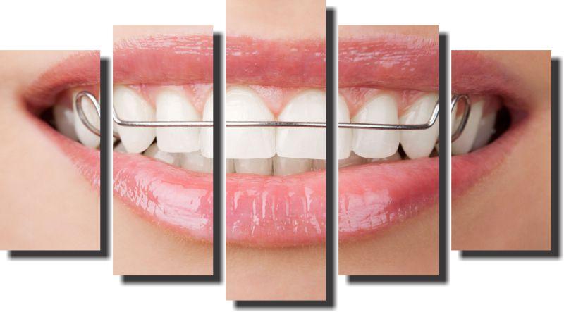 Quadro Decorativo Odontologia Dentista Varias Peças m1