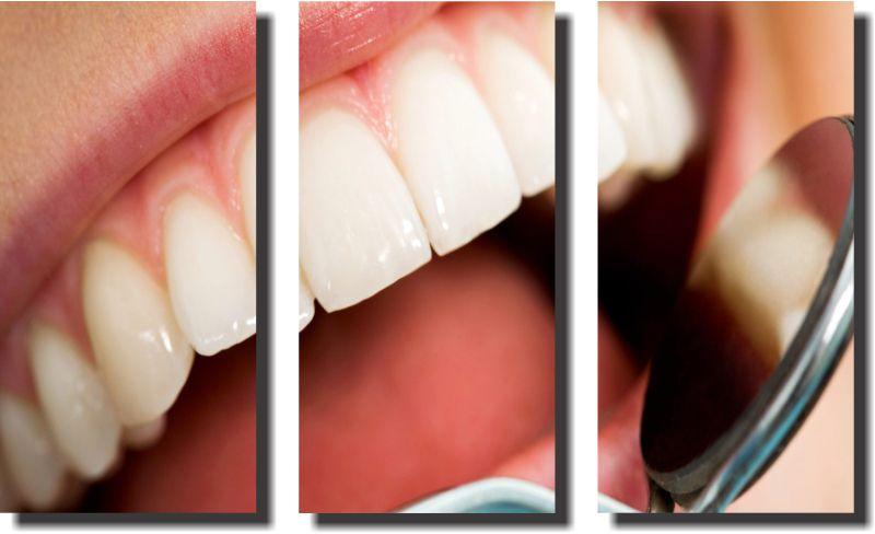 Quadro Decorativo Odontologia Dentista Varias Peças m4