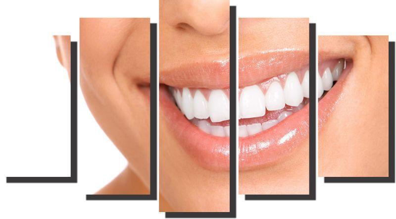 Quadro Decorativo Odontologia Dentista Varias Peças m6