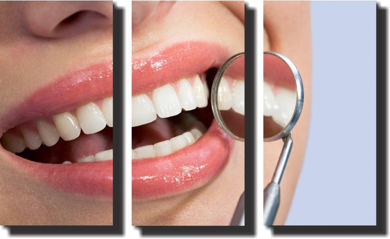 Quadro Decorativo Odontologia Dentista Varias Peças m7