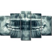 Quadro radiografia dentista