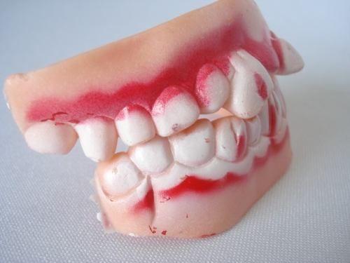 Dentes Mumia Monstro Haloween Silicone Para Adulto Ydh8737  - Presente Presente