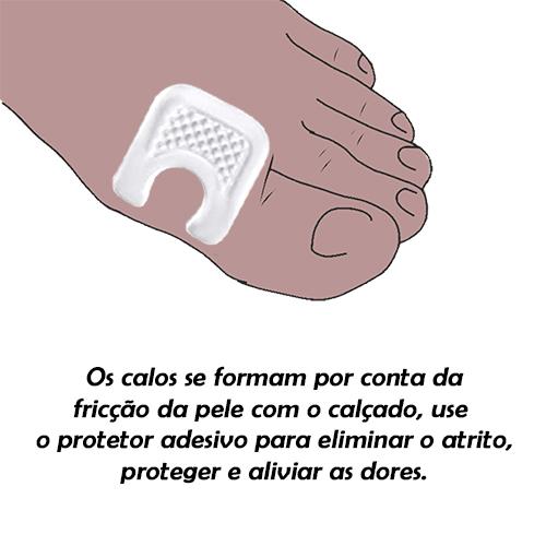 Protetor Adesivo Para Calosidade e Tendão Soft-Gel Ortho Pauher