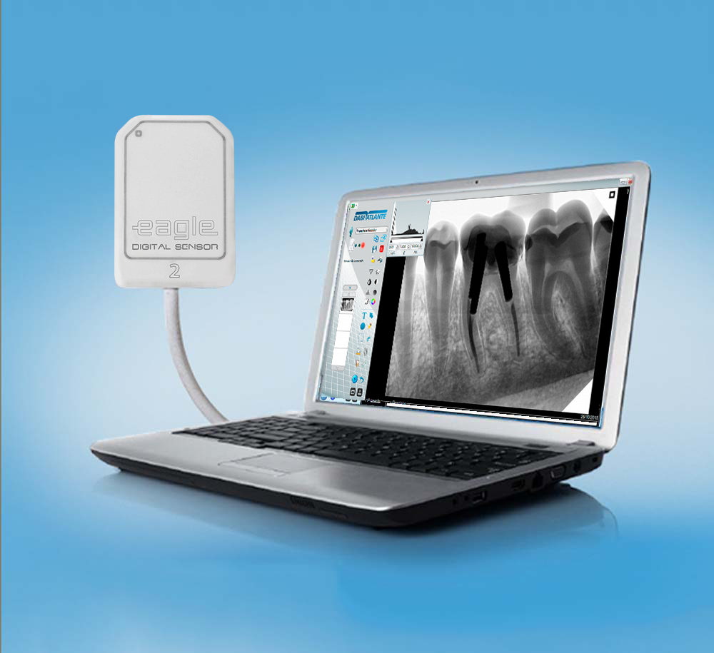 Sensor Intraoral   - DABI ATLANTE - TOP ODONTO