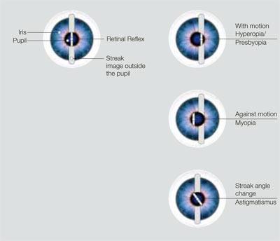 Retinoscópio de Franja Beta 200 cabo com batrias recarregáveis HEINE