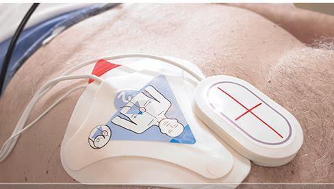 Eletrodo  para desfibrilador ZOLL com sensor CPR