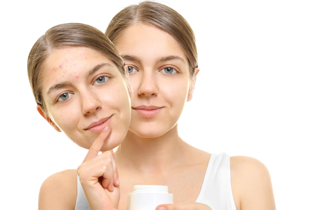 Strataderm 10g Gel de Silicone Para Tratamento de Cicatrizes e Quelóides