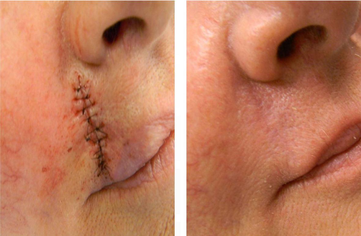 Strataderm 5g Gel de Silicone Para Tratamento de Cicatrizes e Quelóides