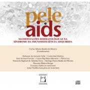 Pele e Aids: manifestações dermatológicas na síndrome da imunodeficiência adquirida