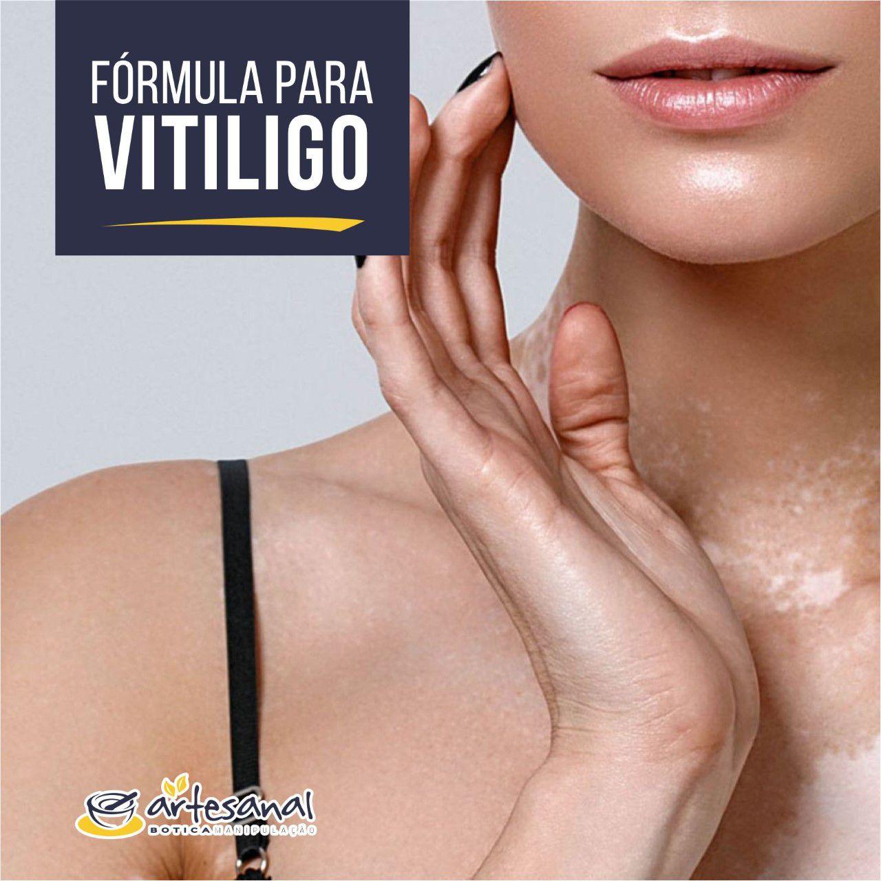 Cápsulas Para Vitiligo - 30 Cps