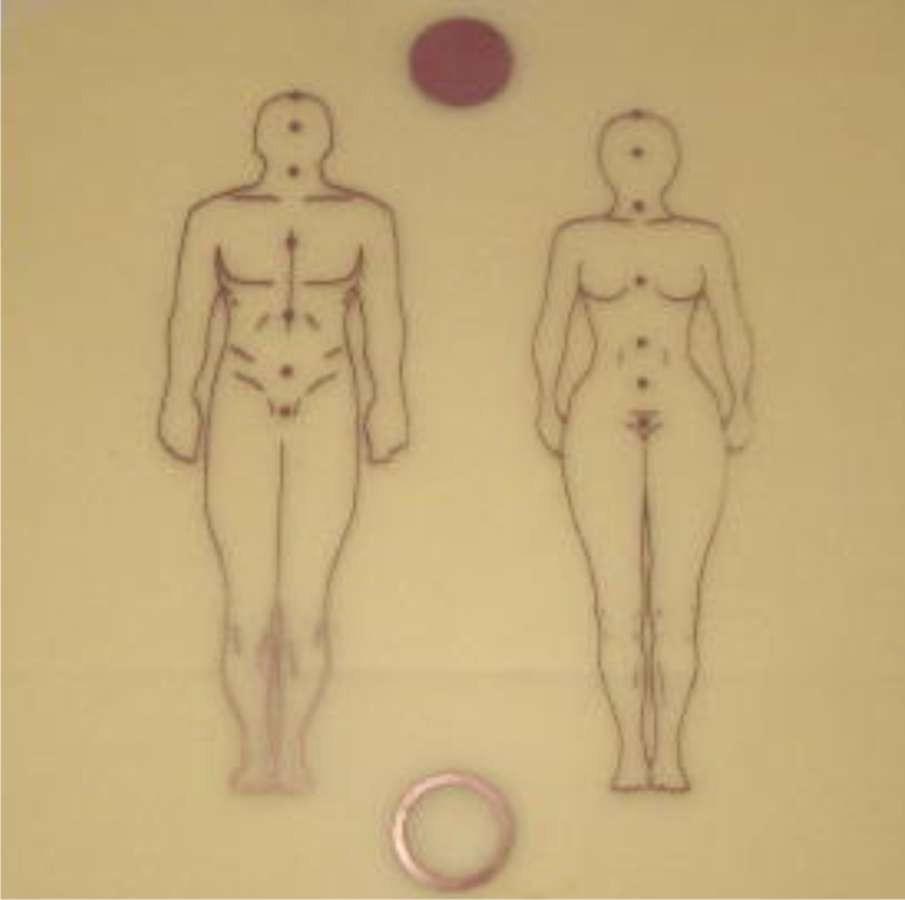 Figura Humana - fen.  -  Zots