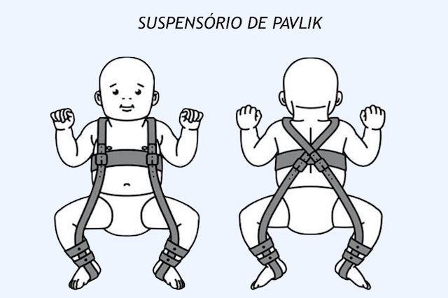 Suspensório Infantil de Pavlik