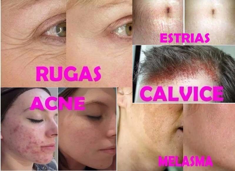 Microagulhamento Dermaroller Tratamento Cicatriz de Pele Rosto e Corpo 2.0mm
