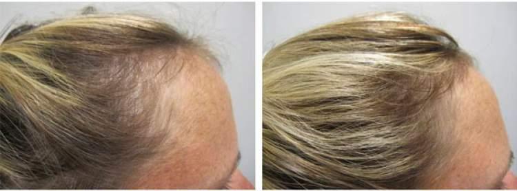Kirkland Minoxidil 5% Original - Tratamento para Calvície, Queda e Crescimento Capilar