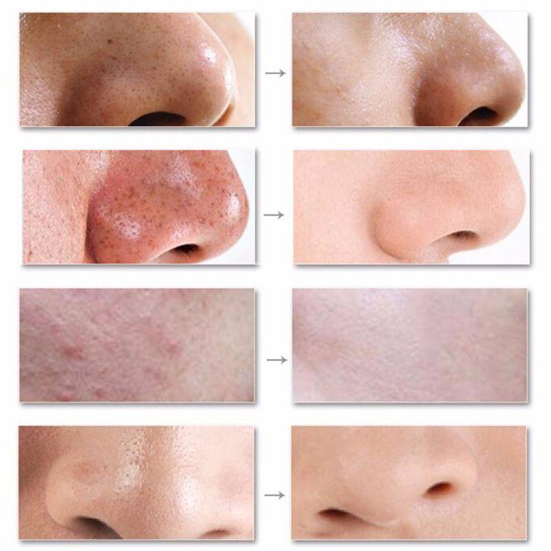 Aparelho Digital Removedor de Cravos e Espinhas Facial Saude e Beleza