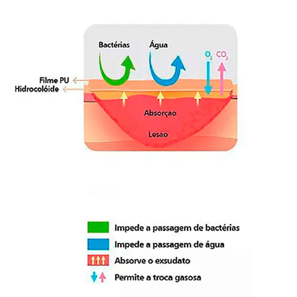Curativo Hidrocoloide Sacral 15x18