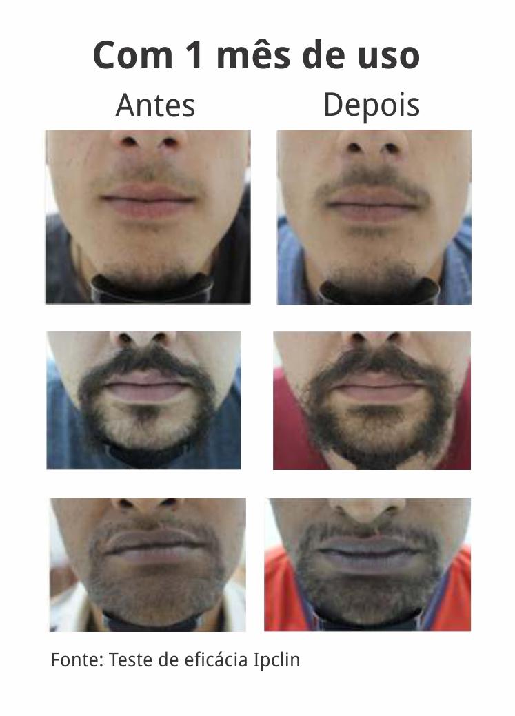 Gel para Crescimento da Barba 60 g (Nordic Beard Growth) - Kit com 3 unidades