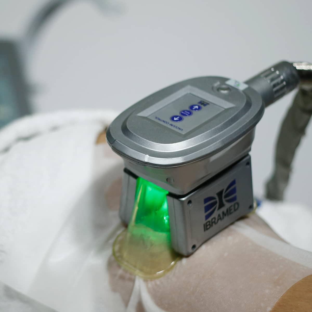 Polarys IBRAMED - Aparelho de Criolipólise com 3 aplicadores