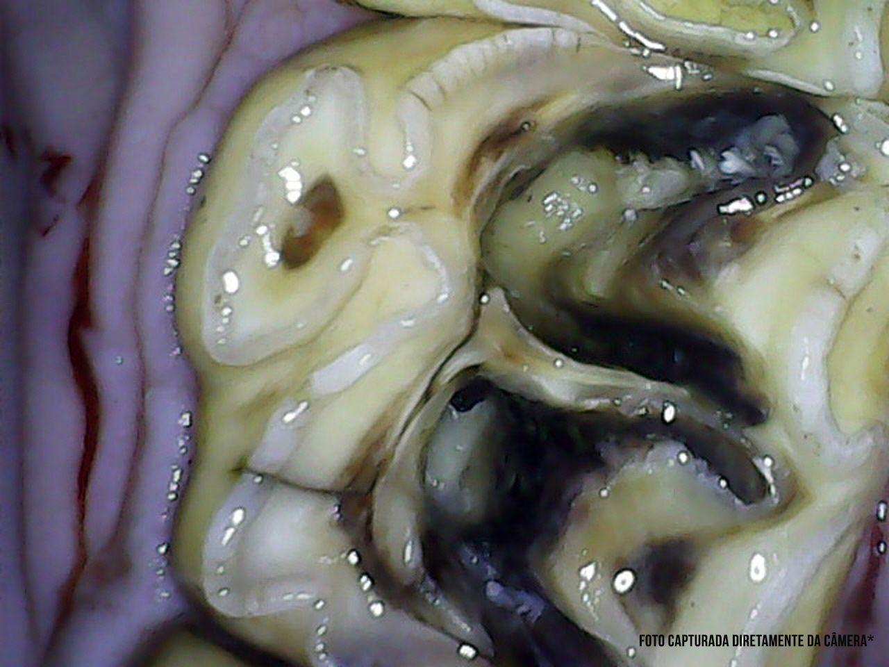 Câmera Intra Oral para Odontologia Equina