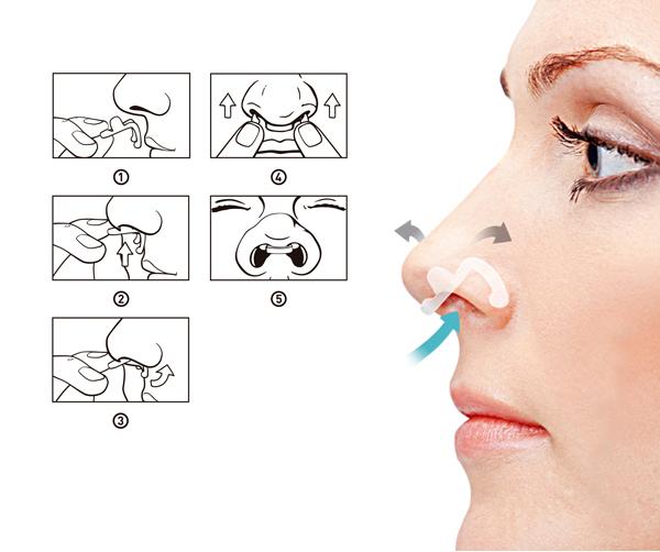 Dilatador Nasal Interno Flux Air com 1 Unidade - Tamanho Grande