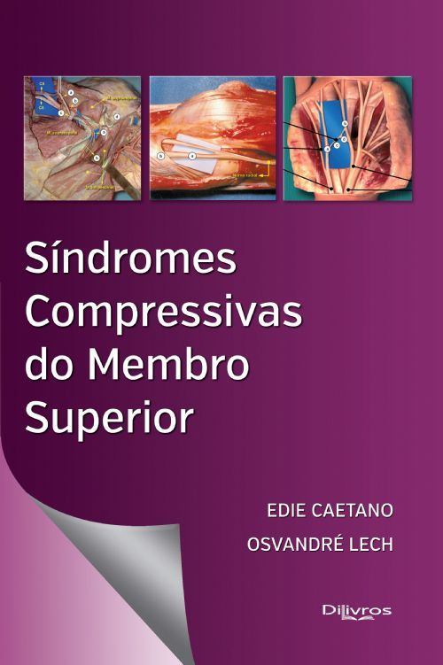 SINDROMES COMPRESSIVAS DO MEMBRO SUPERIOR
