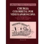 """CIRURGIA COLORRETAL POR VIDEOLAPAROSCOPIA (""""Novo"""" Desgastado pelo tempo)"""