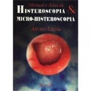 HISTEROSCOPIA &  MICRO-HISTERISCOPIA