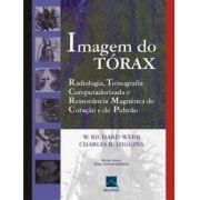 IMAGEM DO TORAX - RADIOLOGIA, TOMOGRAFIA