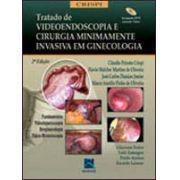 Tratado de Videoendoscopia e Cirurgia Minimamente Invasiva em Ginecologia