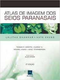 ATLAS DE IMAGEM DOS SEIOS PARANASAIS