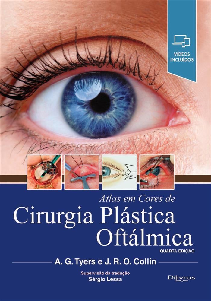 ATLAS EM CORES DE CIRURGIA PLASTICA OFTALMICA  Autor: A G TYERS J R O COLLIN