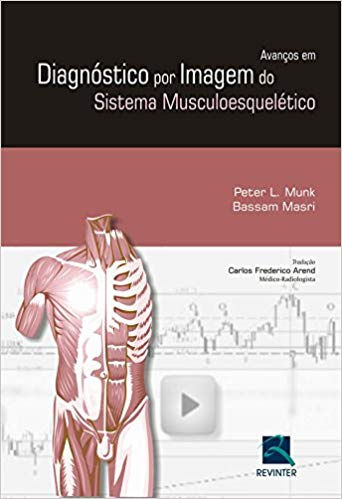 Diagnóstico por imagem Musculoesquelético