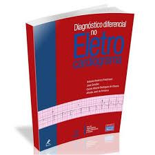 DIAGNÓSTICODIFERENCIAL NO ELETRO CARDIOGRAMA