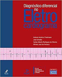 DIAGNÓSTICO DIFERENCIAL NO ELETRO CARDIOGRAMA