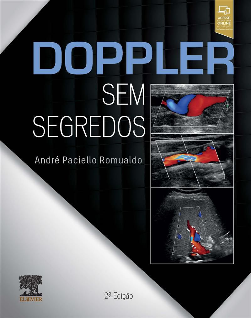 DOPPLER SEM SEGREDOS
