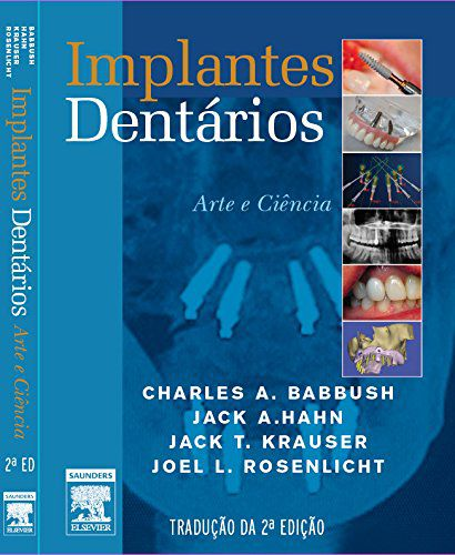 Livro - Implantes Dentários arte e ciencia