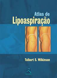 Livro - Atlas de Lipoaspiração