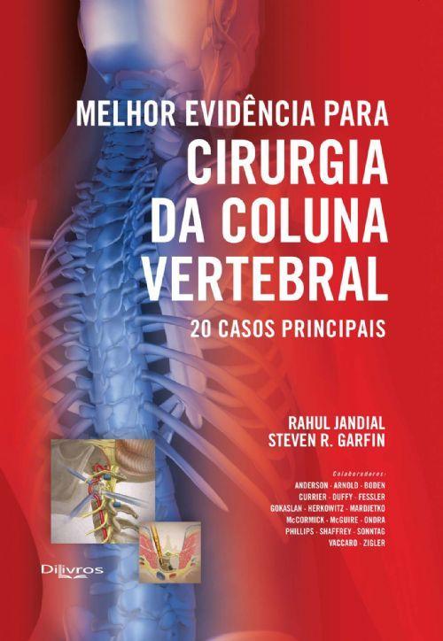 MELHOR EVIDENCIA PARA CIRURGIA DA COLUNA VERTEBRAL