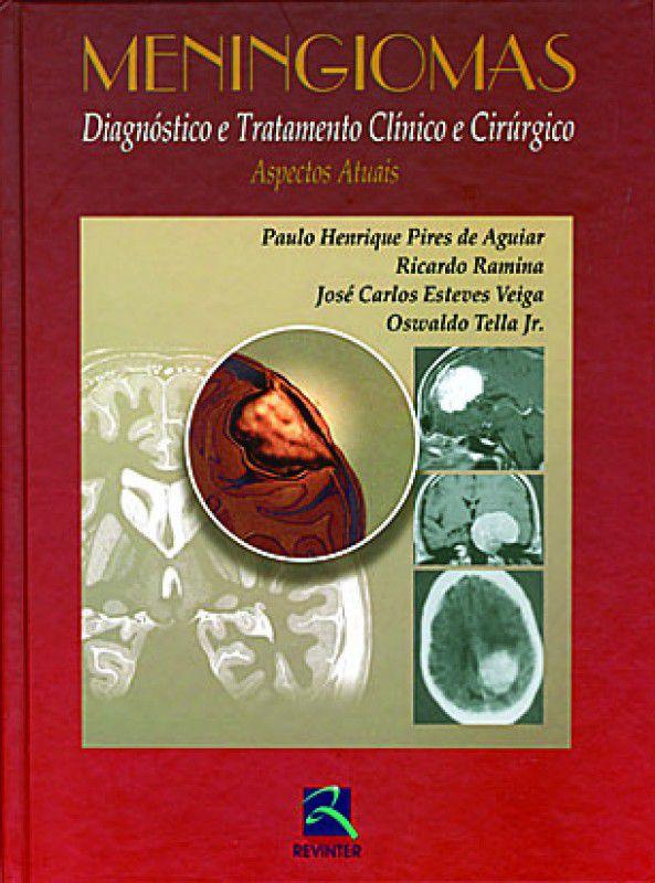 Meningiomas: Diagnóstico e Tratamento Clínico e Cirúrgico - Aspectos Atuais