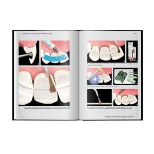Odontologia Reabilitadora Instantânea Com Fibra