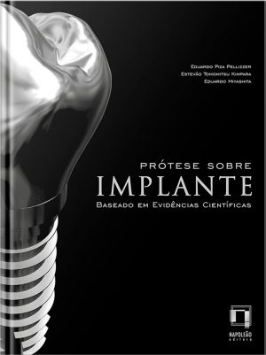 Prótese Sobre Implante  Baseado Em Evidências Científicas