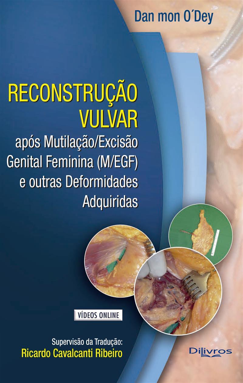 RECONSTRUCAO VULVAR