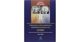 TOMOGRAFIA COMPUTADORIZADA E RESSONÂNCIA MAGNÉTICA DO CRÂNIO