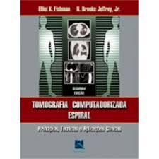 TOMOGRAFIA COMPUTADORIZADA ESPIRAL