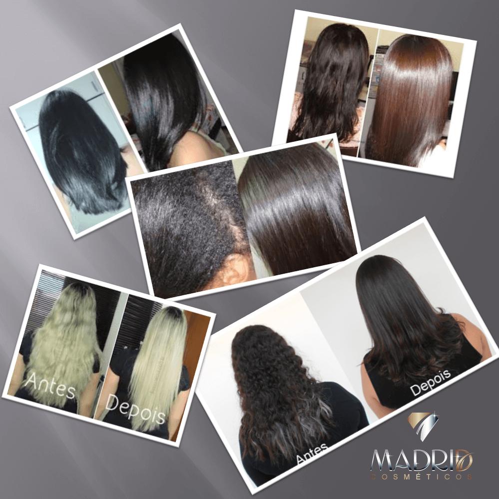 Combo com 4  Botox Liso 3D – Excellence Hair 500g