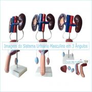 Sistema Urinário Masculino em 6 partes