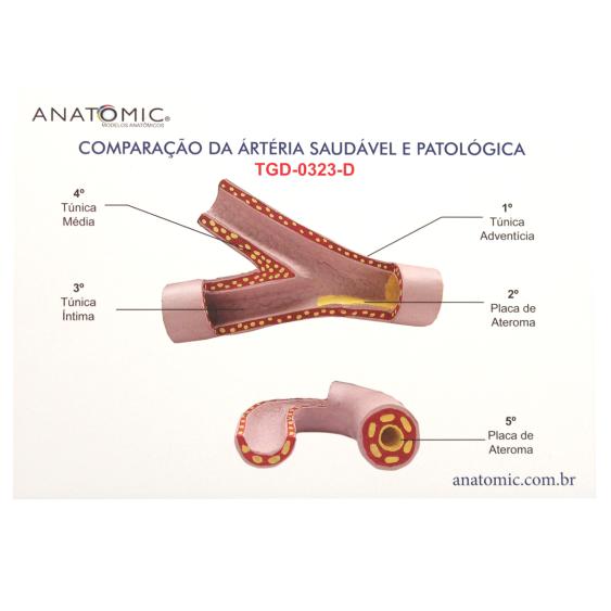 Comparação da Artéria Saudável e Patológica