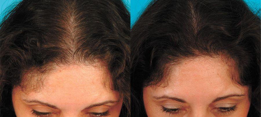 Cresce Cabelo Extrato de Priorin- KIt com 3 Frascos + shampoo e condicionador Frete Grátis Oferta Especial