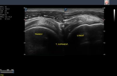 Aparelho de Ultrassom Ecocardiograma - FT422