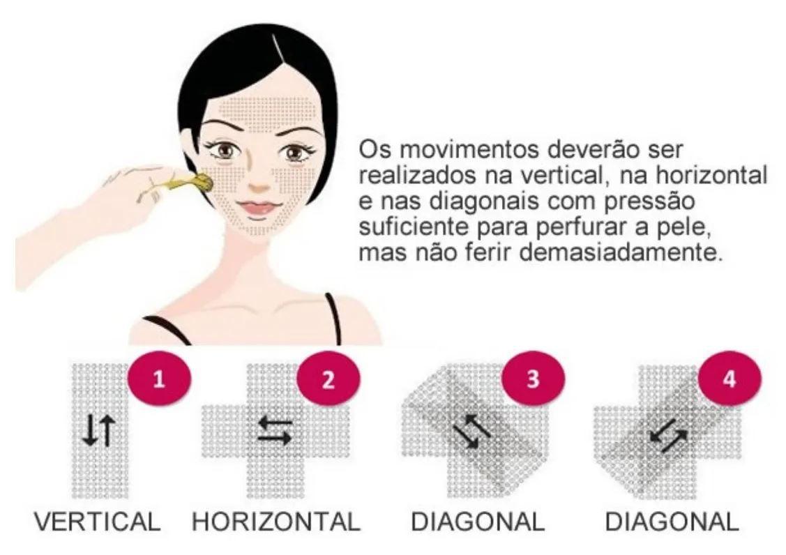 Derma Roller System Rolo Microagulhamento 540 Agulhas Doutor da Estética - Anvisa
